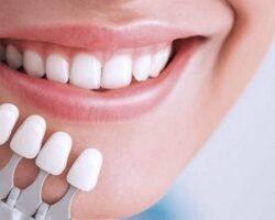 Накладки для зубов или отбеливание: что выбрать?